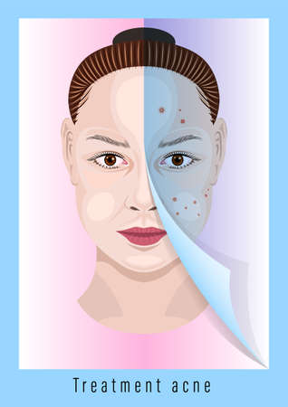 Woman face before and after treatment acne