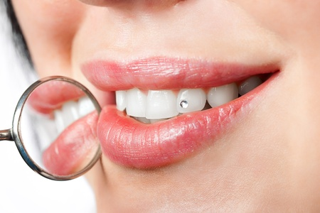 gems: dental mouth mirror near healthy white woman teeth with precious stone on it Stock Photo