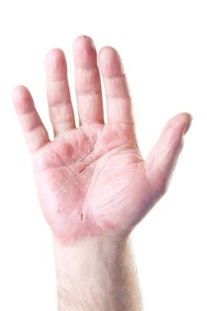 rash: palma de la mano masculina con eczema aisladas sobre fondo blanco Foto de archivo