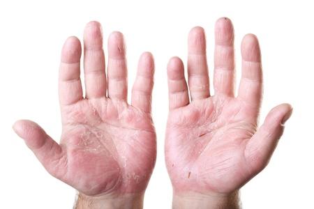 sarpullido: dos palmas de las manos masculinas con eczema aisladas sobre fondo blanco