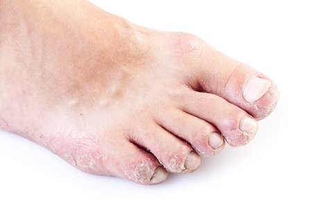 single male foot with eczema isolated on white background photo