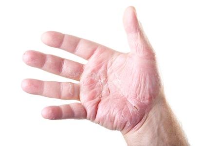 sarpullido: palma de la mano masculina con eczema aisladas sobre fondo blanco Foto de archivo