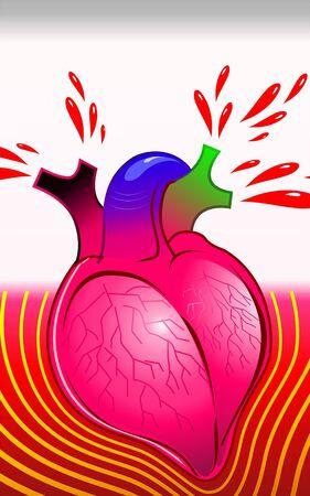 Illustration of heart oozing blood Stock Illustration - 3389803