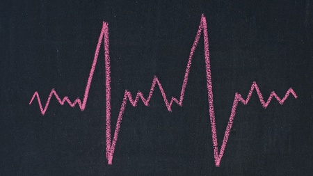 Cardiogram drawn with red chalk on a blackboard photo