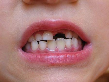 Jonge jongen grimacing, blijkt uit zijn eerste melk ontbrekende tand