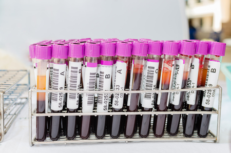 testtube: Medical test-tube with blood samples