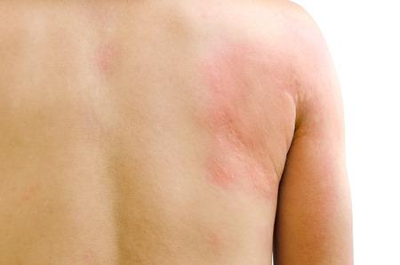 rash: Cierre de la imagen del cuerpo de un hombre que sufre de ortiga urticaria Erupci�n grave aislado sobre fondo blanco.