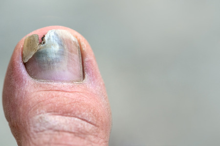 Close up image of man's left foot suffering from toenail fungus with torn or detached nail. Standard-Bild