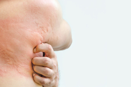 Close up image of man's body suffering severe urticaria, nettle rash on white background with clipping path.
