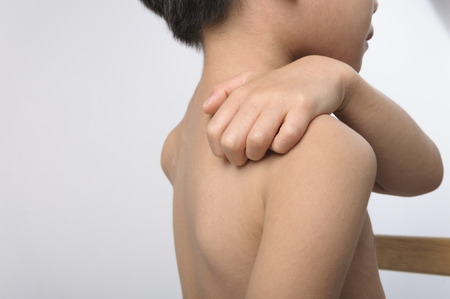 varicela: Uricaria ocurrir en niño hacia atrás y tratar de cera sobre el algodón