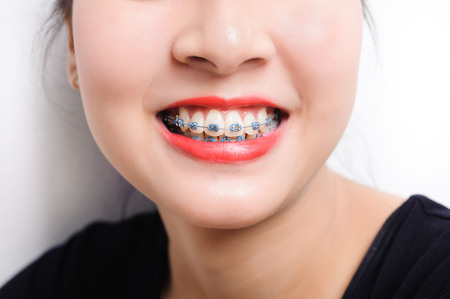 braces: Orthodontic dental in beautiful young asian girl Stock Photo