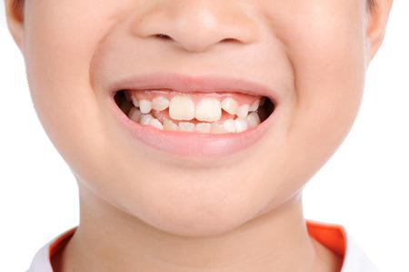 薄いフォーカス少年の笑顔に間近で白い背景の上の歯を見せる