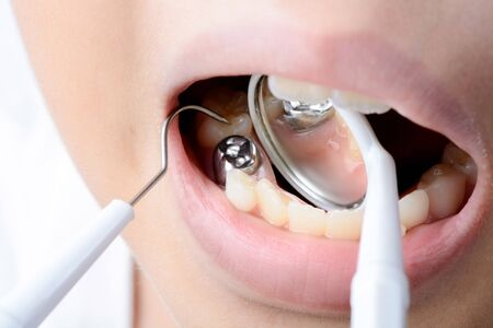 dental health: Close up in child mount and checking tooth and  by dental mirror tools.