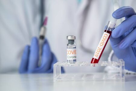 Doctor holding test tube with blood for 2019-nCoV analyzing. covid-19 virus, Coronavirus blood test Concept.