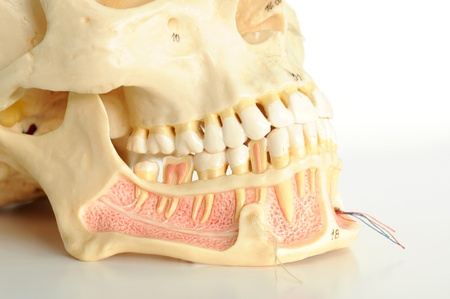 dientes sucios: cerca de cr�neo humano