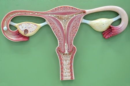 infertility: uterus of human