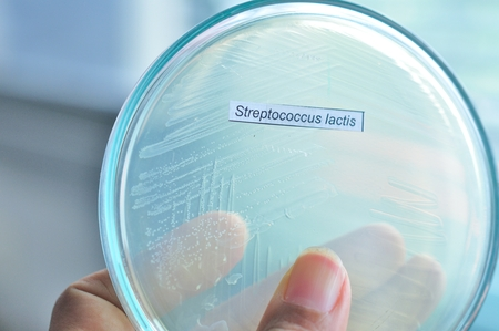 streptococcus lactis in petridish photo