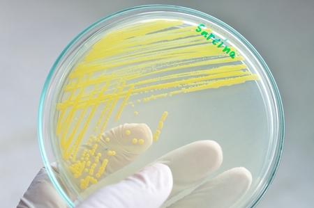 yellow colony in petridish