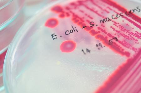 microbiology: colonia roja en placa de Petri en la prueba de laboratorio de microbiolog�a