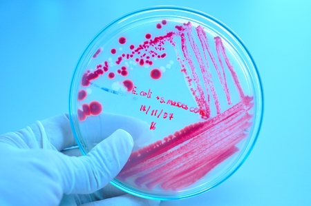 organisms: red colony in petridish in microbiology laboratory test Stock Photo