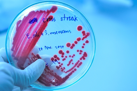 red colony in petridish in microbiology laboratory test photo