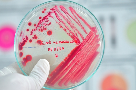 red colony in petridish in microbiology laboratory test Stock Photo