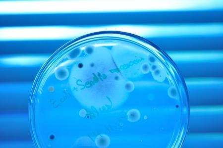 penicilium in petridish photo