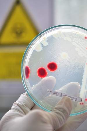 red colony in petridish photo