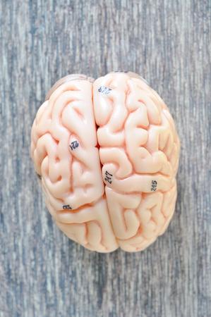 hypothalamus: human brain