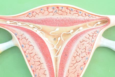 infertile: close up to uterus Stock Photo