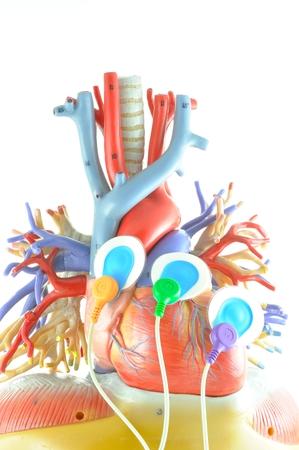 impulses: leads of electrocardiogram equipment Stock Photo