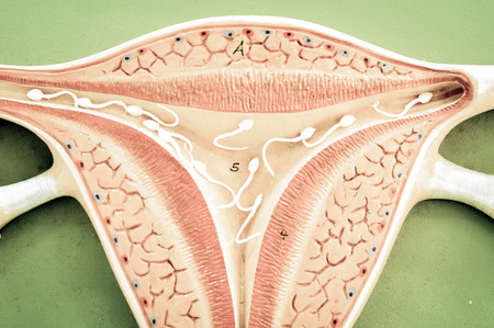 infertile: uterus of human with old color style