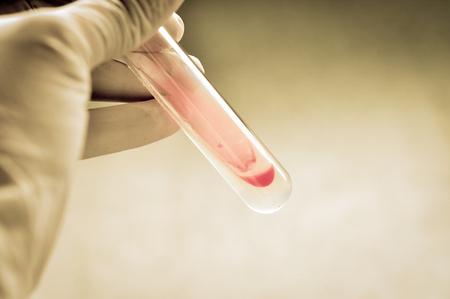 microbiology: prueba de laboratorio de microbiolog�a con estilo de color de edad