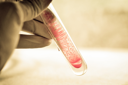 microbiology laboratory test with old color style
