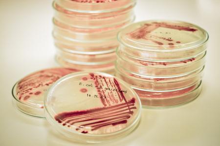 microbiologia: prueba de laboratorio de microbiología con estilo de color de edad