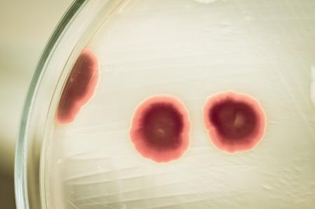 microbiologia: prueba de laboratorio de microbiolog�a con estilo de color de edad