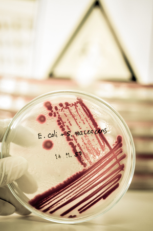 microbiologia: microbiology laboratory test with old color style