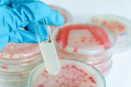 microbiology: prueba de laboratorio de microbiolog�a