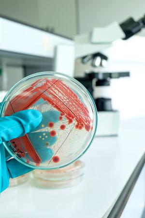 microbiologia: prueba de laboratorio de microbiología