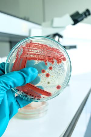 microbiologia: prueba de laboratorio de microbiolog�a