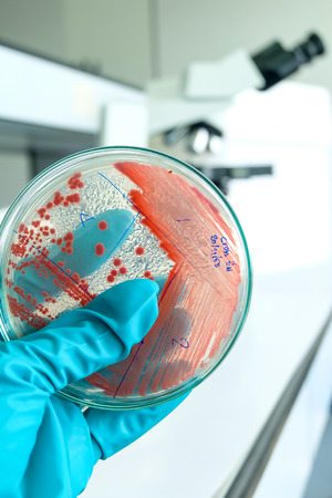 red colony pf becteria in petridish in microbiology laboratory