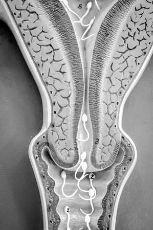 Baarmoeder van de mens met zwart-witte kleur