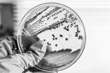 黒と白の色をシャーレーで細菌のコロニー