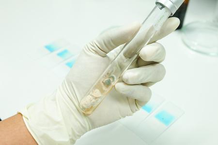 fungi colony in test tube