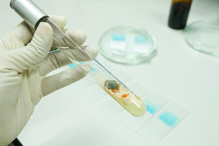 petri: fungi colony in test tube