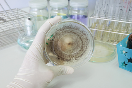 fungi colony in petridish