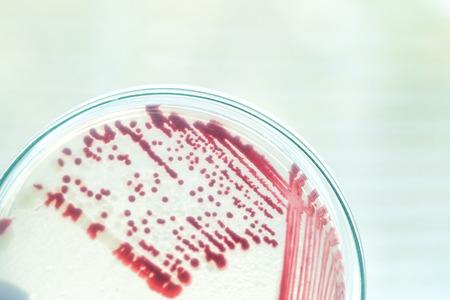 bacteria colony in petridish