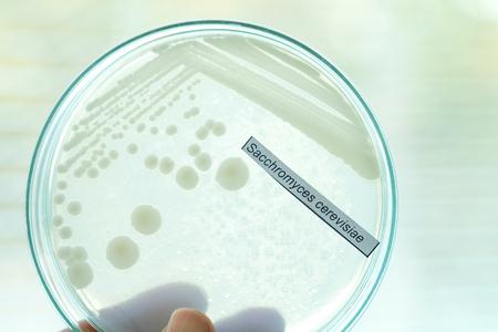 シャーレーの細菌コロニー