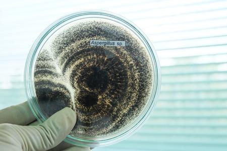 petri dish: fungi colony in petridish