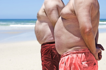 belly fat: Close up of two obese fat men of the beach Stock Photo